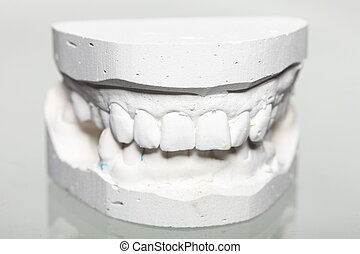 Dental gypsum model mould of teeth in plaster