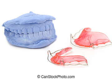 dental gypsum models and dental brace (Retainer)