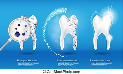 Dental health Concept Vector set. 3d realistic shiny clean and dirty tooth on blue background, clearing and Whitening tooth process. Oral Care, teeth restoration