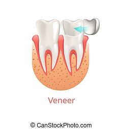 dental, ilustração, realístico, vetorial, folheado, 3d