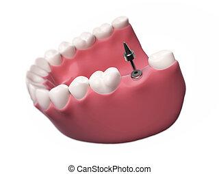 Dental implant - 3d rendered illustration of a dental...
