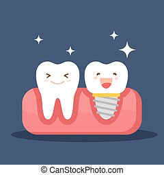 Dental implant and a normal tooth. Restoration in the oral cavity. Flat illustration on the theme of dentistry. Vector illustration isolated on blue background.