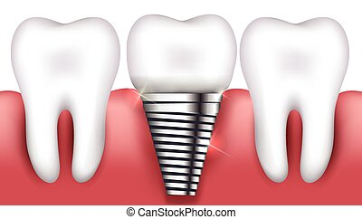 Dental implant and normal tooth beautiful bright...