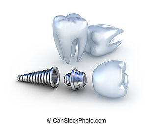 Dental implant and teeth, isolated