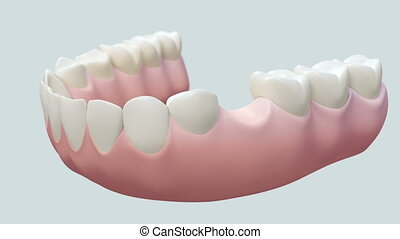 Dental Implant Bright. - High quality animation 3D showing...
