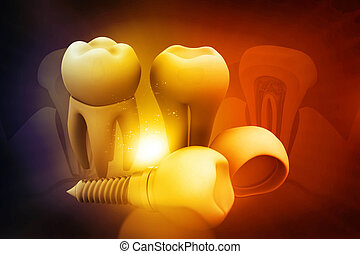 Dental implant concept on beautiful background