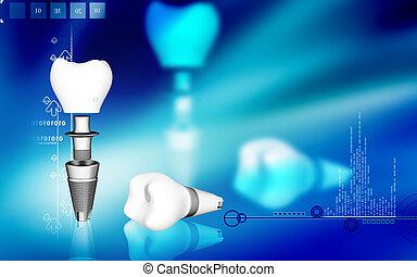 Dental implant - Digital illustration Dental implant in...