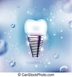 Dental implant on an abstract light blue background
