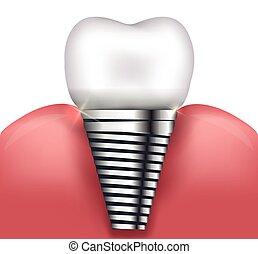Dental implant beautiful bright illustration