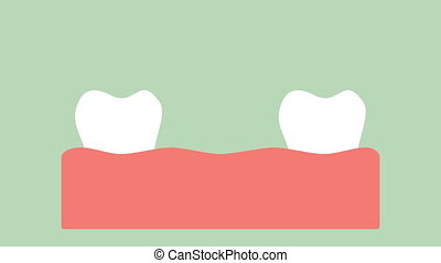 dental implant, installation process and change of teeth