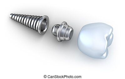 Dental implant lying on surface top side view isolated on...
