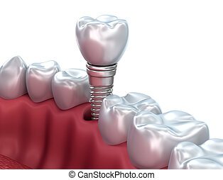 Dental implant, Medically accurate 3D illustration
