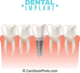 Dental Implant Model Side View Poster - Dental implant model...