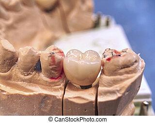 Dental implant model with pin and dental implant. Dental model