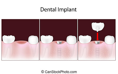 Dental implant procedure, eps10