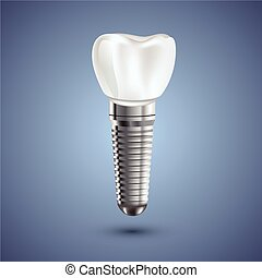 Dental implant realistic anatomy illustration. Dental view...