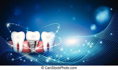 Dental implant scientific modern design