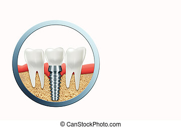 Dental implant, stainless gum post, medical information poster. Teeth replacement concept, dentures, copy space. 3D illustration, 3D graphics.