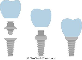 Dental implant system