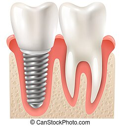 Dental Implant Tooth Set Closeup Model - Dental implants and...