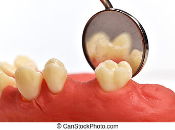 dental implant tooth