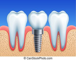 Dental implant - Vector illustration - dental implant and...