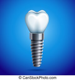 Dental implant - Vector illustration - dental implant icon