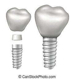 Dental Implant Vector. Implant Structure. Crown, Abutment, Screw. Realistic Isolated Illustration