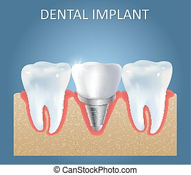 Dental implant vector medical poster design template