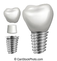 Dental Implant Vector. Side View. Graphic Design Element....