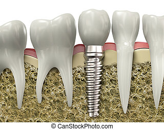 Dental implant - Very high resolution 3d rendering of a...