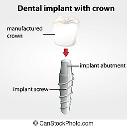 Dental implant with crown - Illustration of a dental implant...