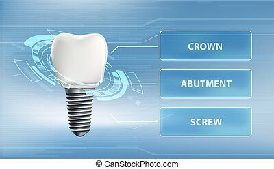 Dental implant with screw and crown. Technology user interface.