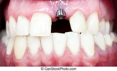 dental, implantat