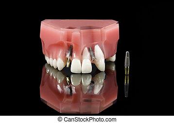 dental, implantat, und, z�hne, modell