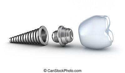 dental, implante, acostado, en, su, lado