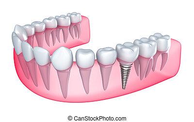 dental, implante, en, el, goma