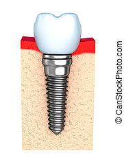 dental, implante, en, hueso de la quijada