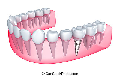 dental, implante, gengiva