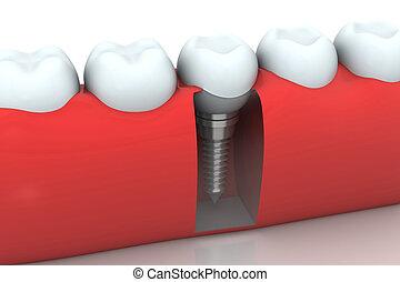 dental, implante, humano, diente
