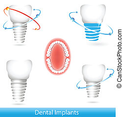 Dental implants. Beautiful bright colors