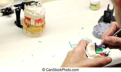 Dental implants laboratory. Dental technician modeling clasp...