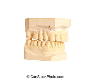 dental impression 4