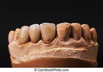 Dental impression.