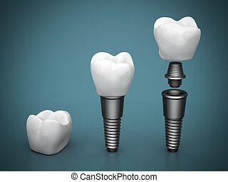 dental, injertos