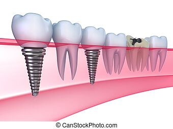 dental, injertos, en, el, goma