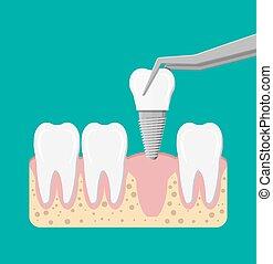 dental, instalación, implante