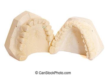 dental, intryck, 5