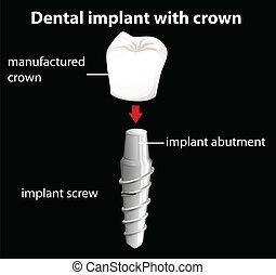 dental, krona, implantat