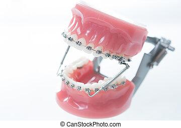 Dental lower jaw bracket braces model on white